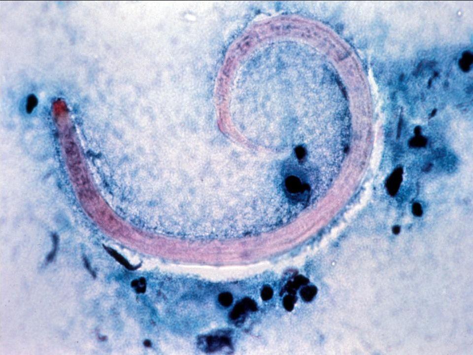 Askaris larvası