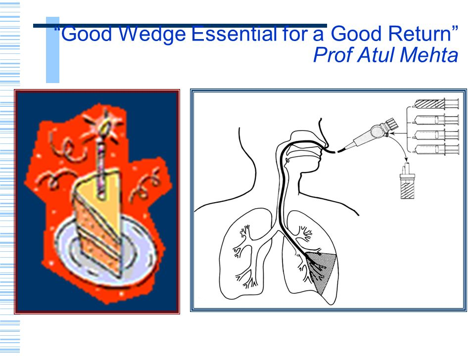 Good Wedge Essential for a Good Return Prof Atul Mehta