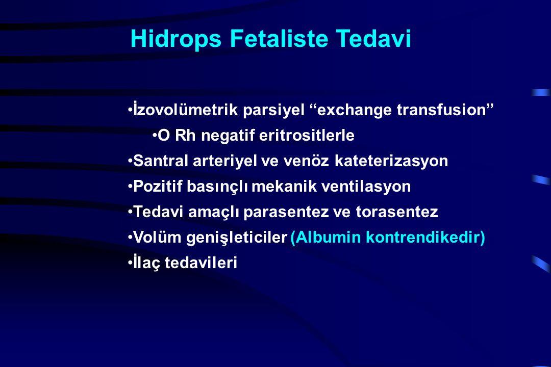 Hidrops Fetaliste Tedavi