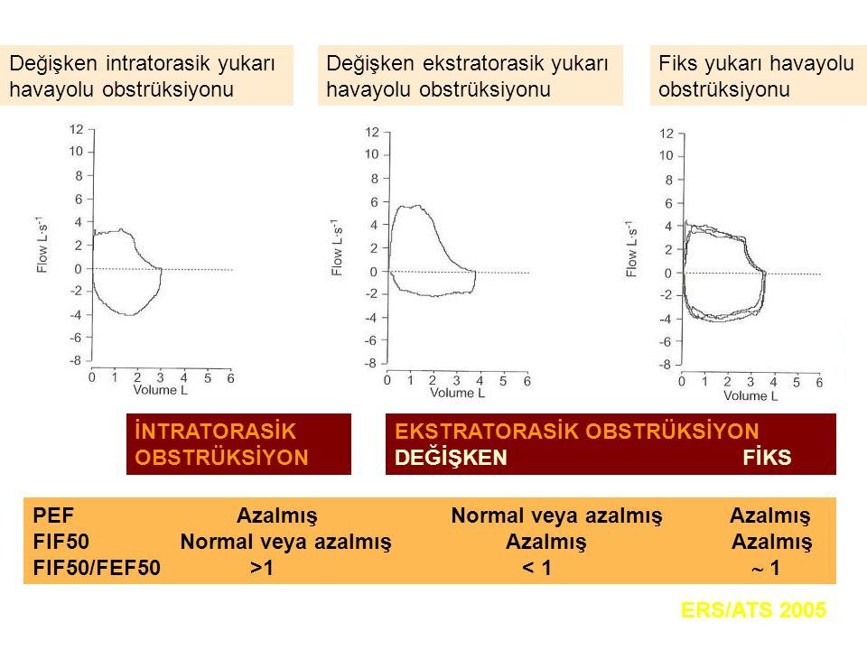 Değişken intratorasik yukarı havayolu obstrüksiyonu