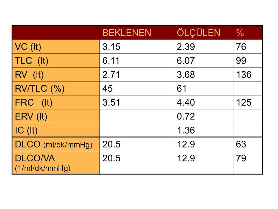 BEKLENEN ÖLÇÜLEN. % VC (lt) 3.15. 2.39. 76. TLC (lt) 6.11. 6.07. 99. RV (lt) 2.71. 3.68.