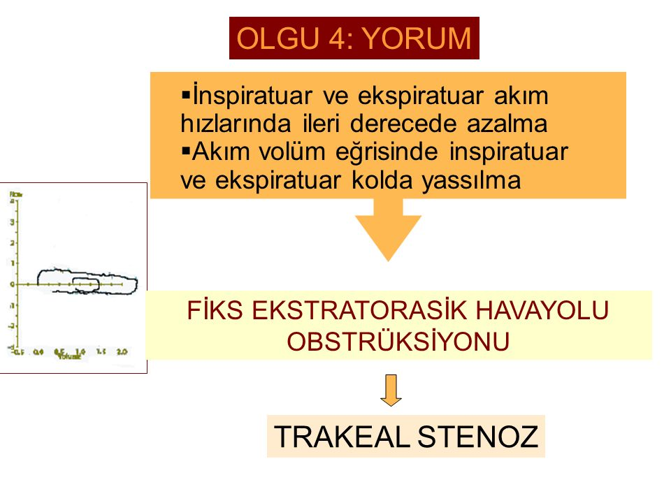 FİKS EKSTRATORASİK HAVAYOLU OBSTRÜKSİYONU