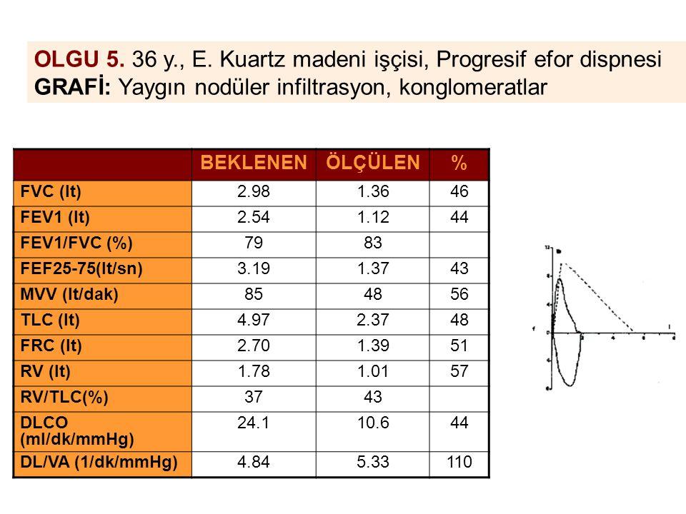 OLGU 5. 36 y., E. Kuartz madeni işçisi, Progresif efor dispnesi