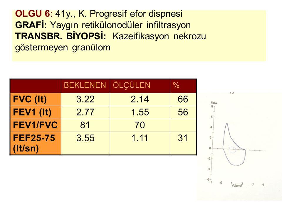 OLGU 6: 41y., K. Progresif efor dispnesi GRAFİ: Yaygın retikülonodüler infiltrasyon TRANSBR. BİYOPSİ: Kazeifikasyon nekrozu göstermeyen granülom