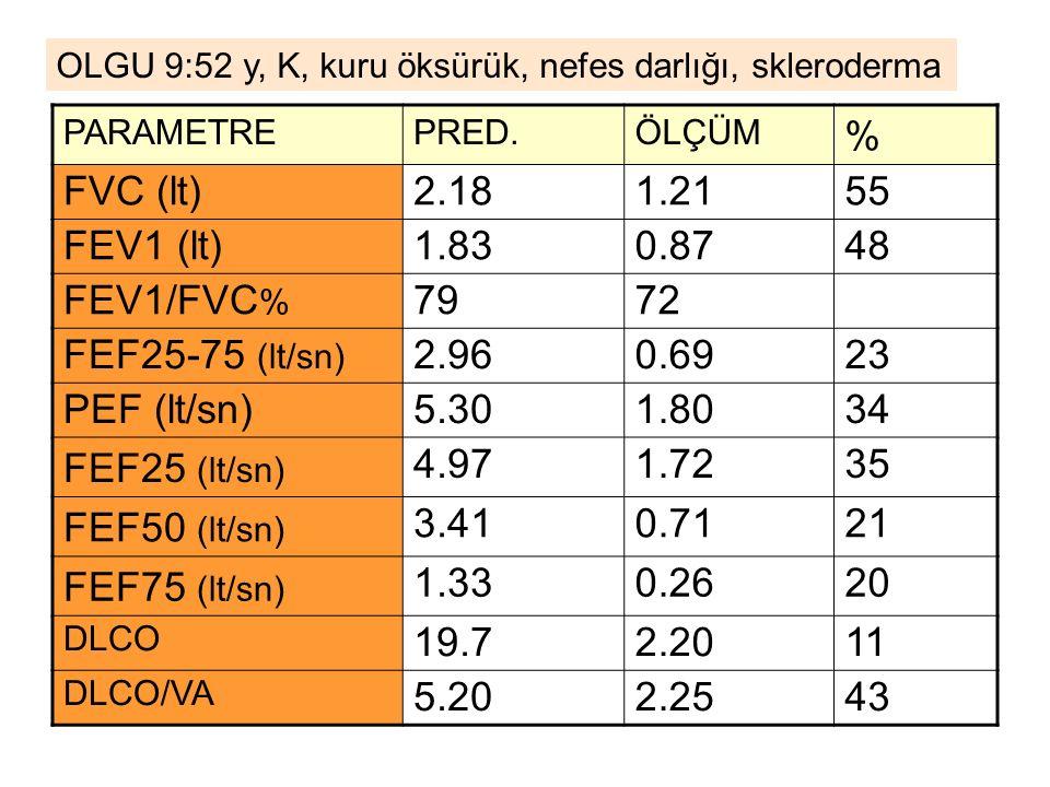 % FVC (lt) 2.18 1.21 55 FEV1 (lt) 1.83 0.87 48 FEV1/FVC% 79 72
