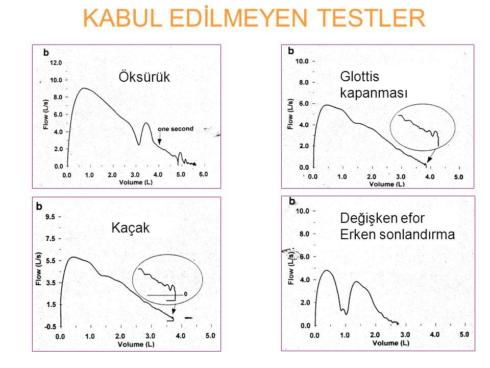 KABUL EDİLMEYEN TESTLER