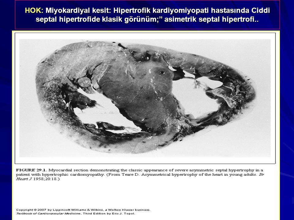 HOK: Miyokardiyal kesit: Hipertrofik kardiyomiyopati hastasında Ciddi septal hipertrofide klasik görünüm; asimetrik septal hipertrofi..