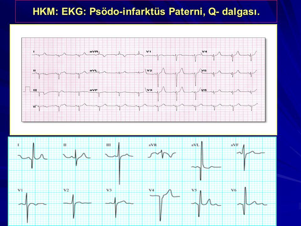 HKM: EKG: Psödo-infarktüs Paterni, Q- dalgası.