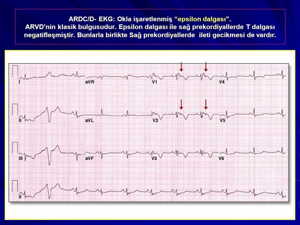 ARDC/D- EKG: Okla işaretlenmiş epsilon dalgası