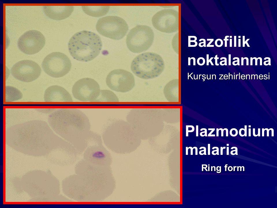 Bazofilik noktalanma Kurşun zehirlenmesi Plazmodium malaria Ring form