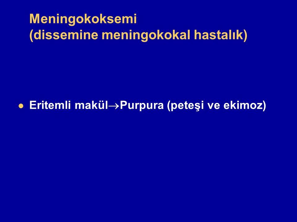 Meningokoksemi (dissemine meningokokal hastalık)