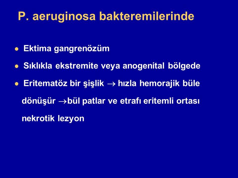 P. aeruginosa bakteremilerinde