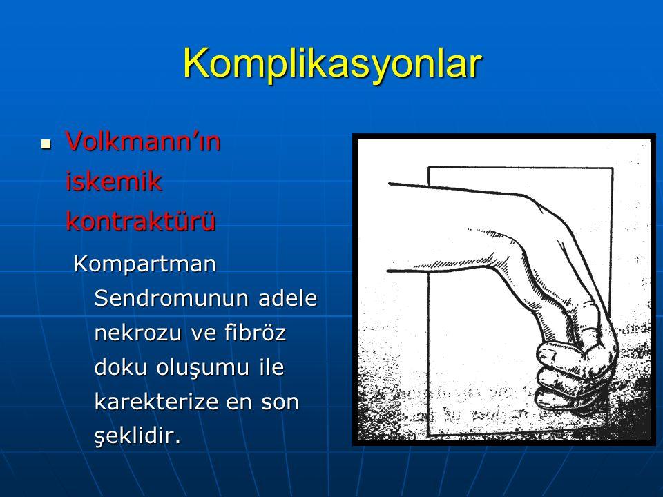 Komplikasyonlar Volkmann'ın iskemik kontraktürü