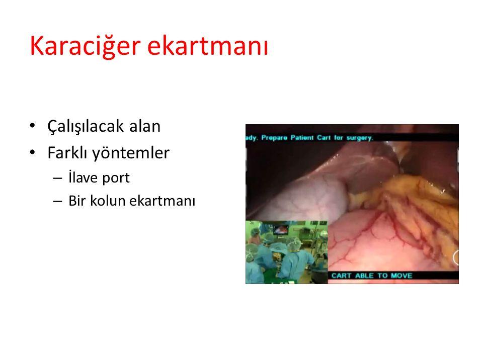 Karaciğer ekartmanı Çalışılacak alan Farklı yöntemler İlave port