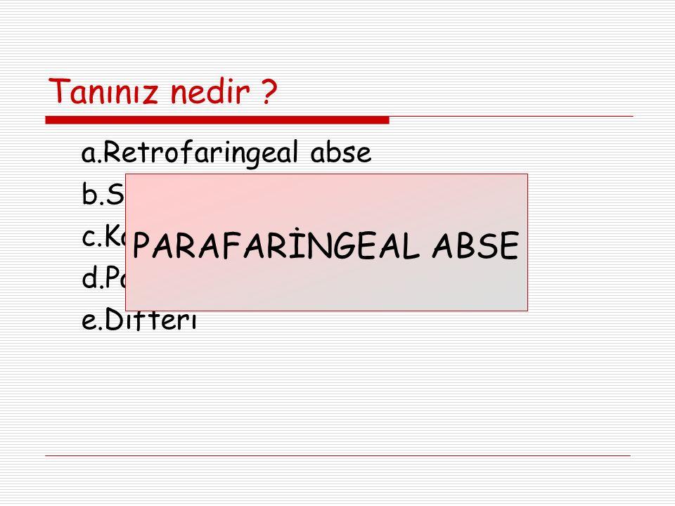 Tanınız nedir PARAFARİNGEAL ABSE a.Retrofaringeal abse