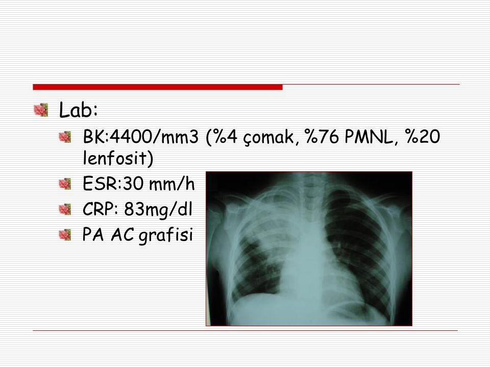 Lab: BK:4400/mm3 (%4 çomak, %76 PMNL, %20 lenfosit) ESR:30 mm/h