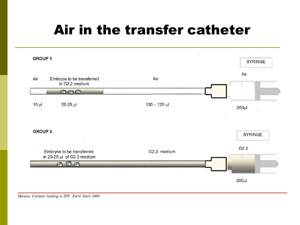 Air in the transfer catheter