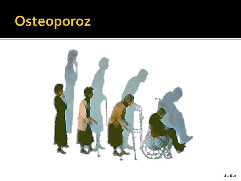 Osteoporoz SerBoz