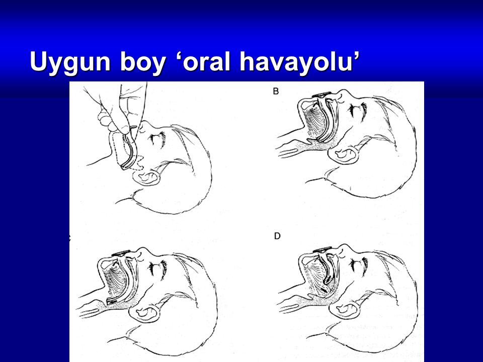 Uygun boy 'oral havayolu'