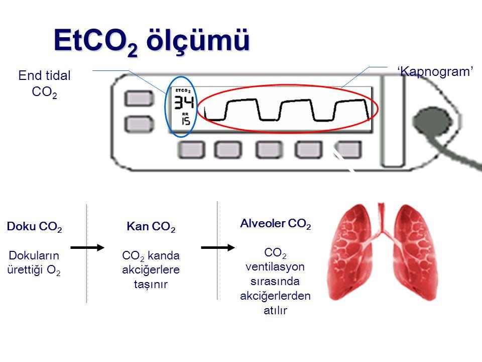 EtCO2 ölçümü 'Kapnogram' End tidal CO2 Alveoler CO2