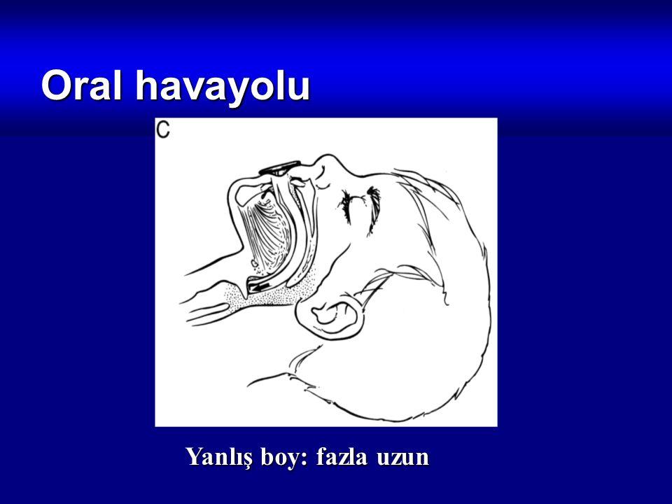 Oral havayolu Yanlış boy: fazla uzun