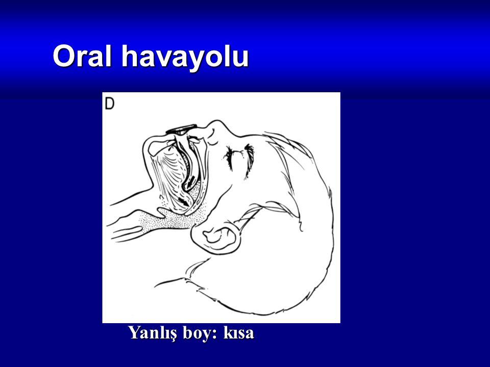 Oral havayolu Yanlış boy: kısa