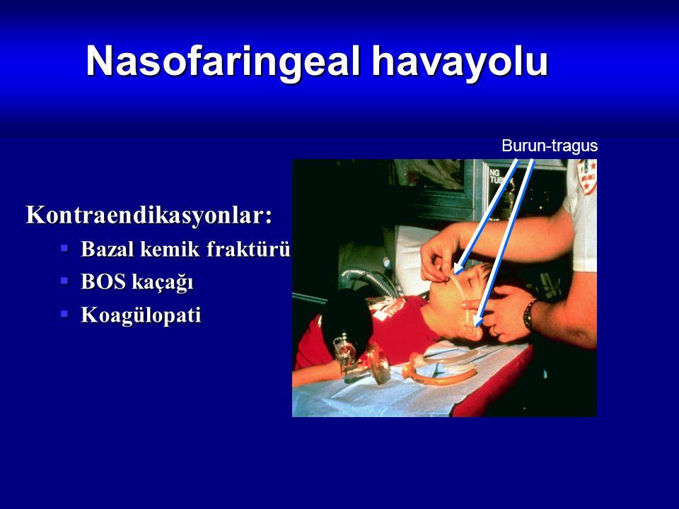 Nasofaringeal havayolu