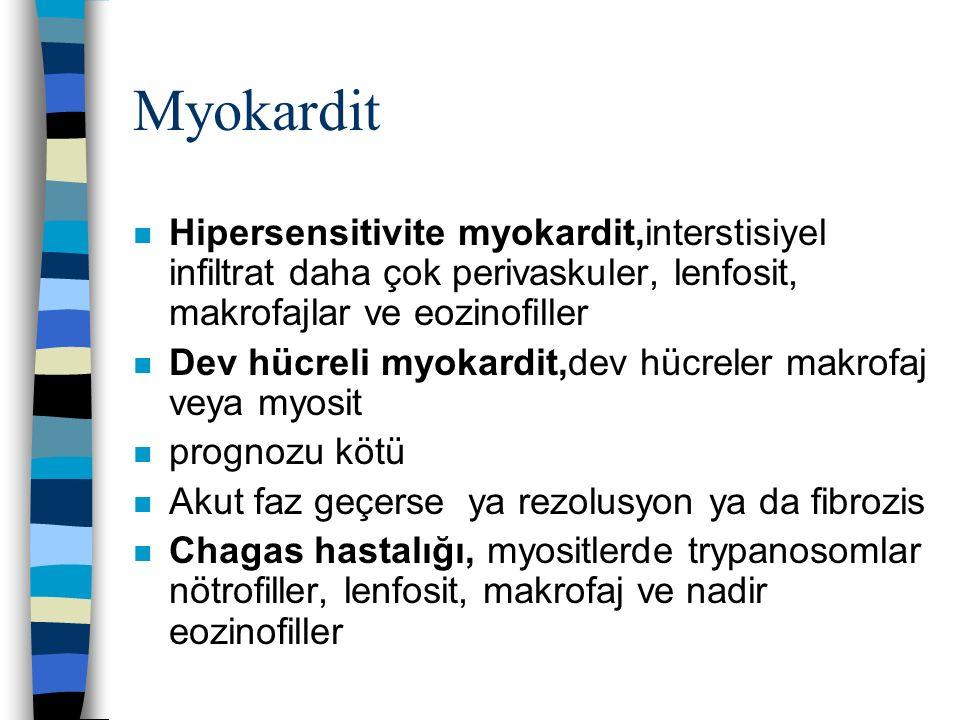 Myokardit Hipersensitivite myokardit,interstisiyel infiltrat daha çok perivaskuler, lenfosit, makrofajlar ve eozinofiller.