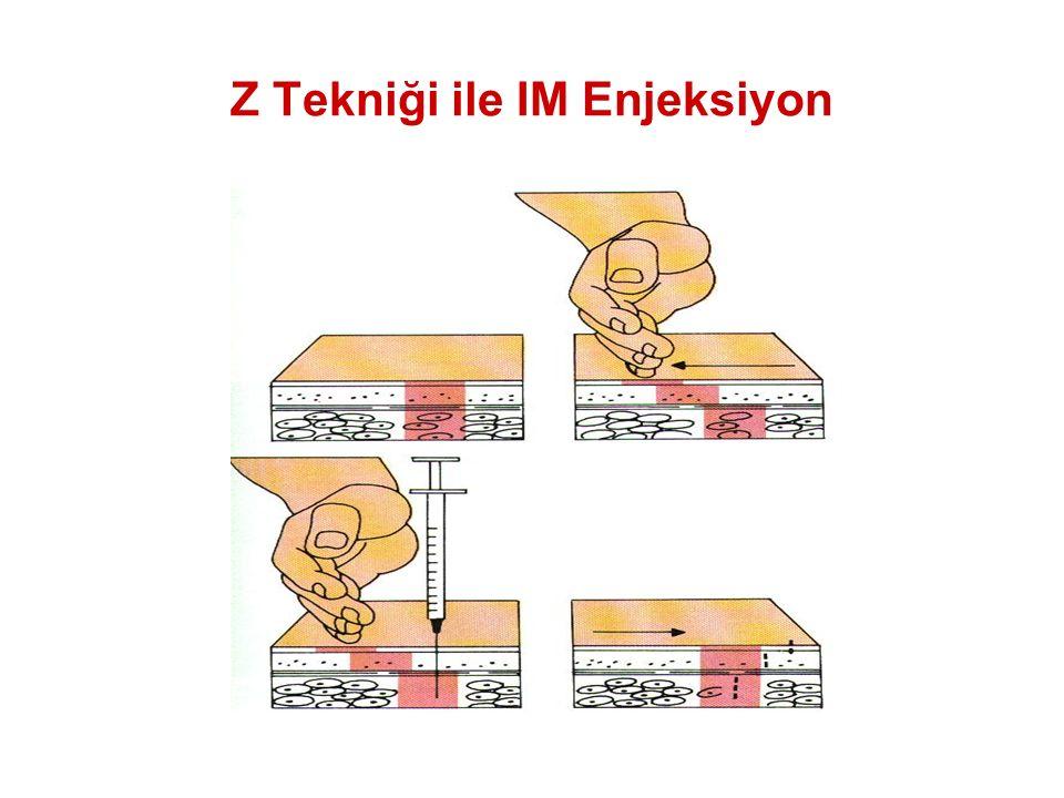 Z Tekniği ile IM Enjeksiyon
