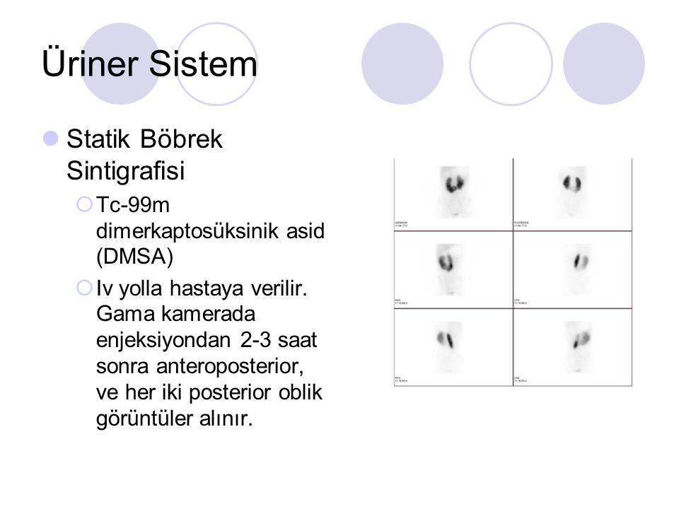 Üriner Sistem Statik Böbrek Sintigrafisi