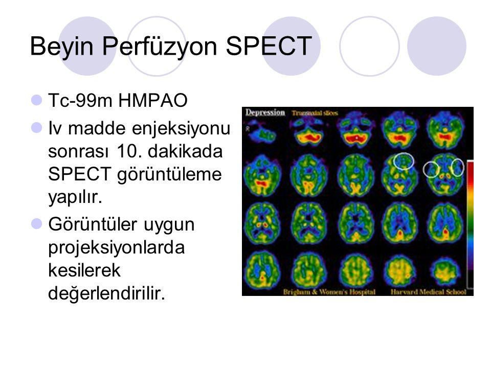 Beyin Perfüzyon SPECT Tc-99m HMPAO