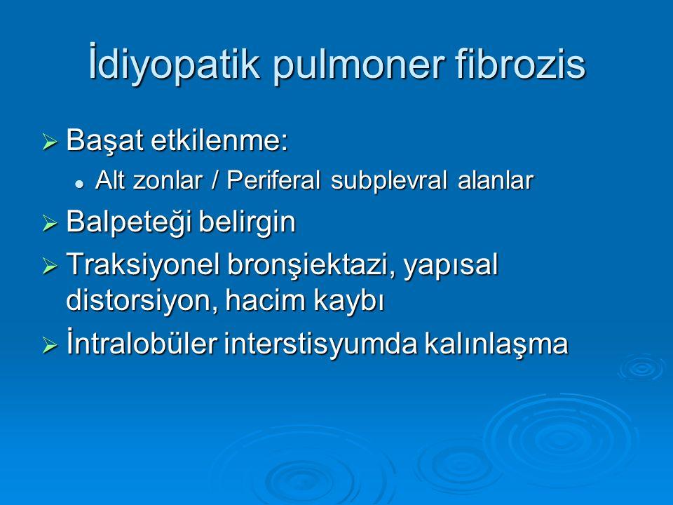 İdiyopatik pulmoner fibrozis
