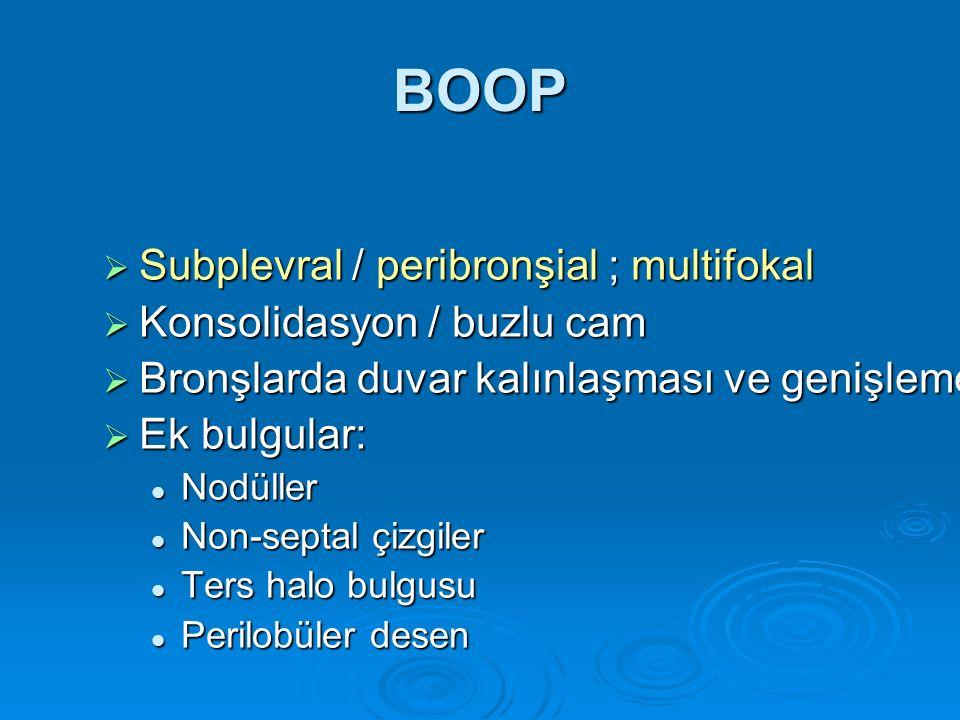 BOOP Subplevral / peribronşial ; multifokal Konsolidasyon / buzlu cam