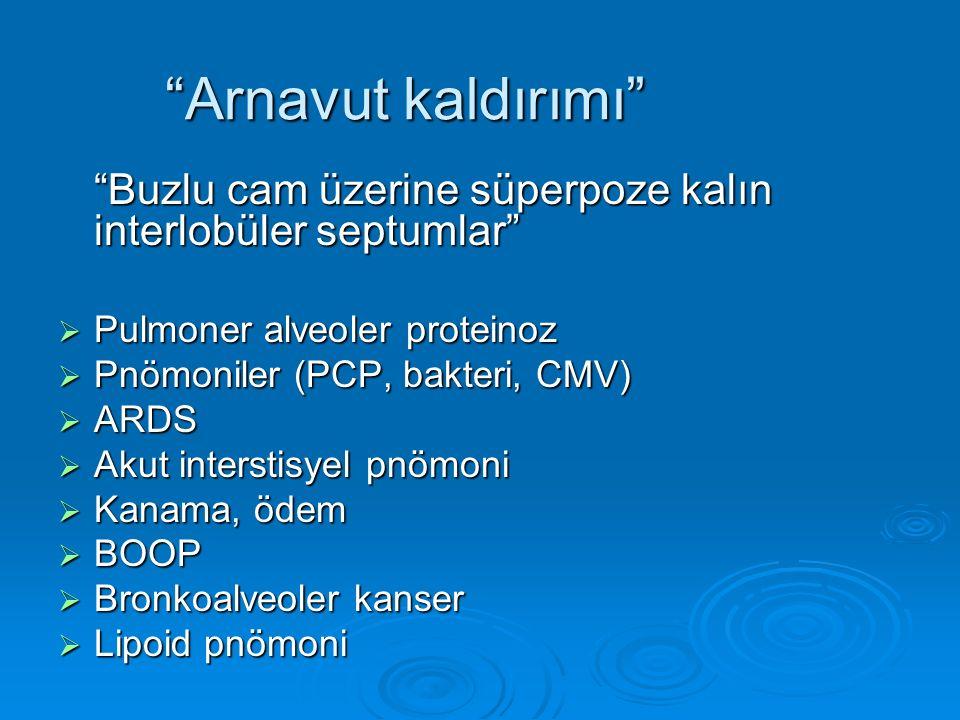 Arnavut kaldırımı Buzlu cam üzerine süperpoze kalın interlobüler septumlar Pulmoner alveoler proteinoz.