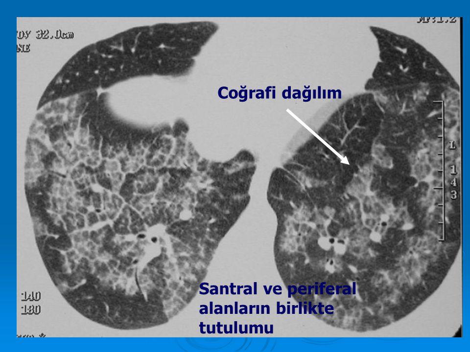 Coğrafi dağılım Santral ve periferal alanların birlikte tutulumu