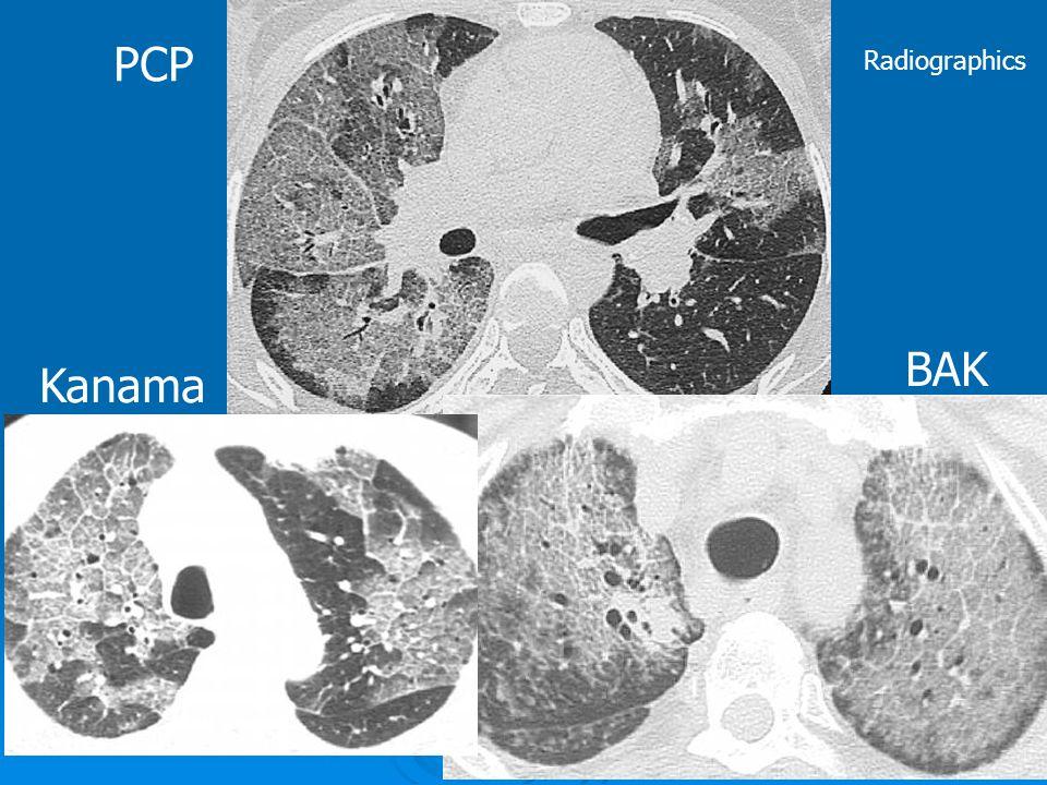PCP Radiographics BAK Kanama