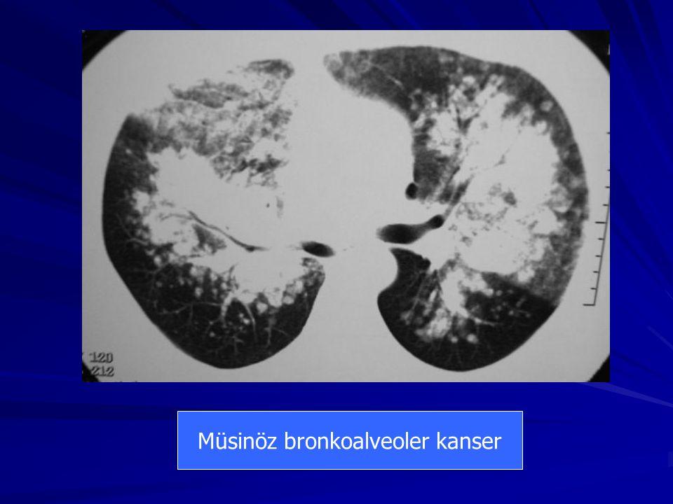 Müsinöz bronkoalveoler kanser