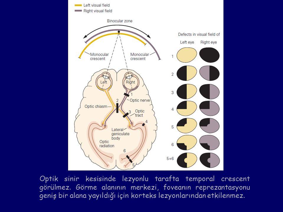 Optik sinir kesisinde lezyonlu tarafta temporal crescent görülmez