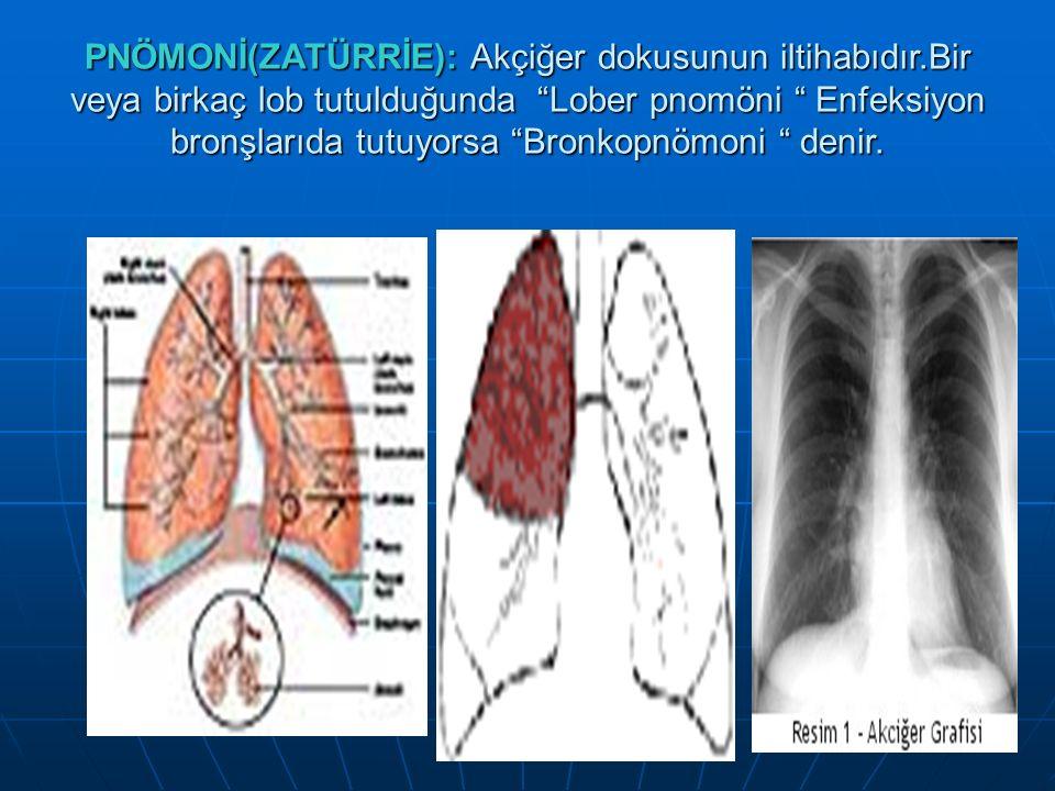 PNÖMONİ(ZATÜRRİE): Akçiğer dokusunun iltihabıdır