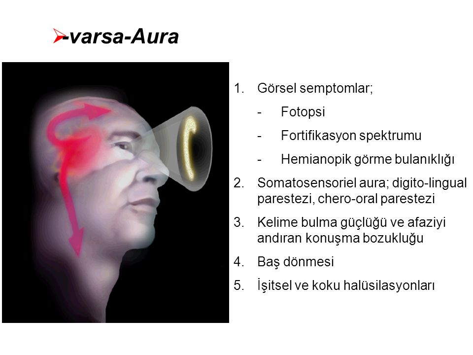 -varsa-Aura Görsel semptomlar; Fotopsi Fortifikasyon spektrumu