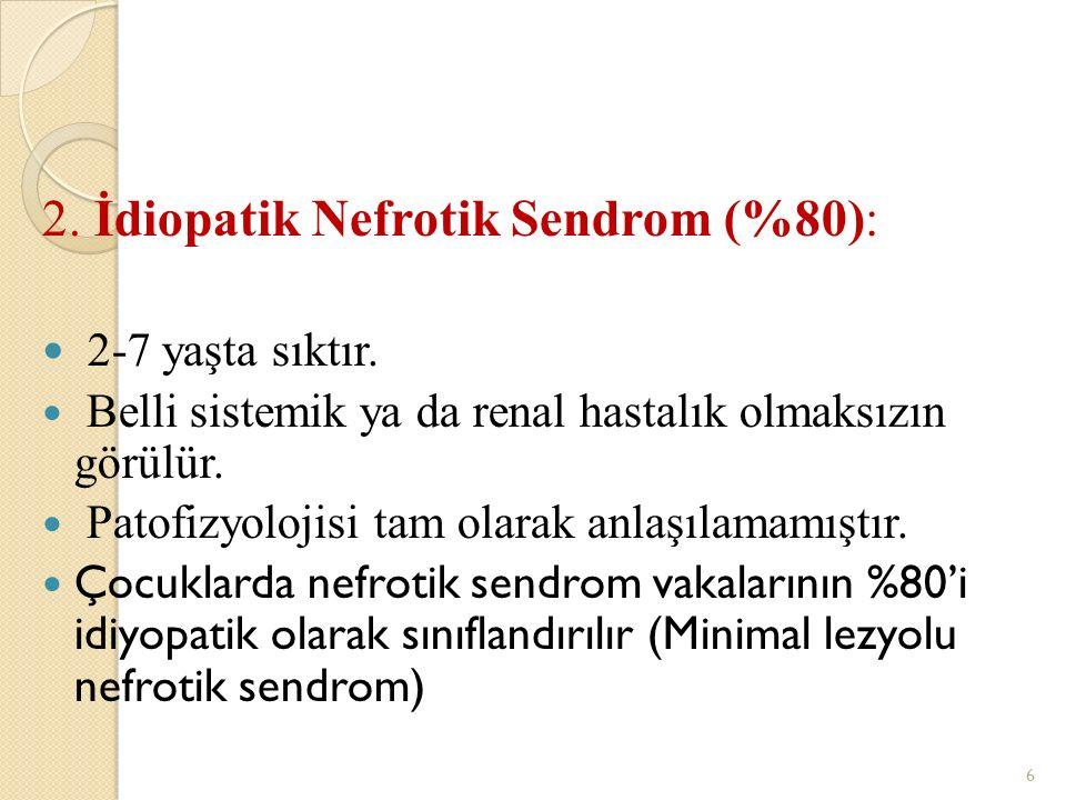 2. İdiopatik Nefrotik Sendrom (%80): 2-7 yaşta sıktır.