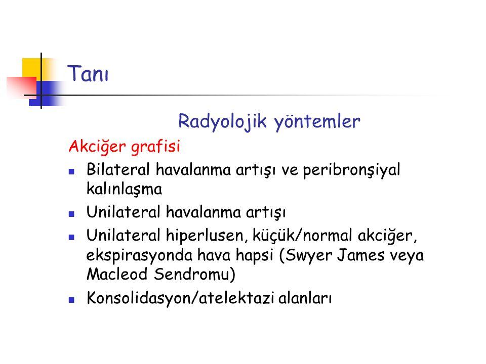 Tanı Radyolojik yöntemler Akciğer grafisi