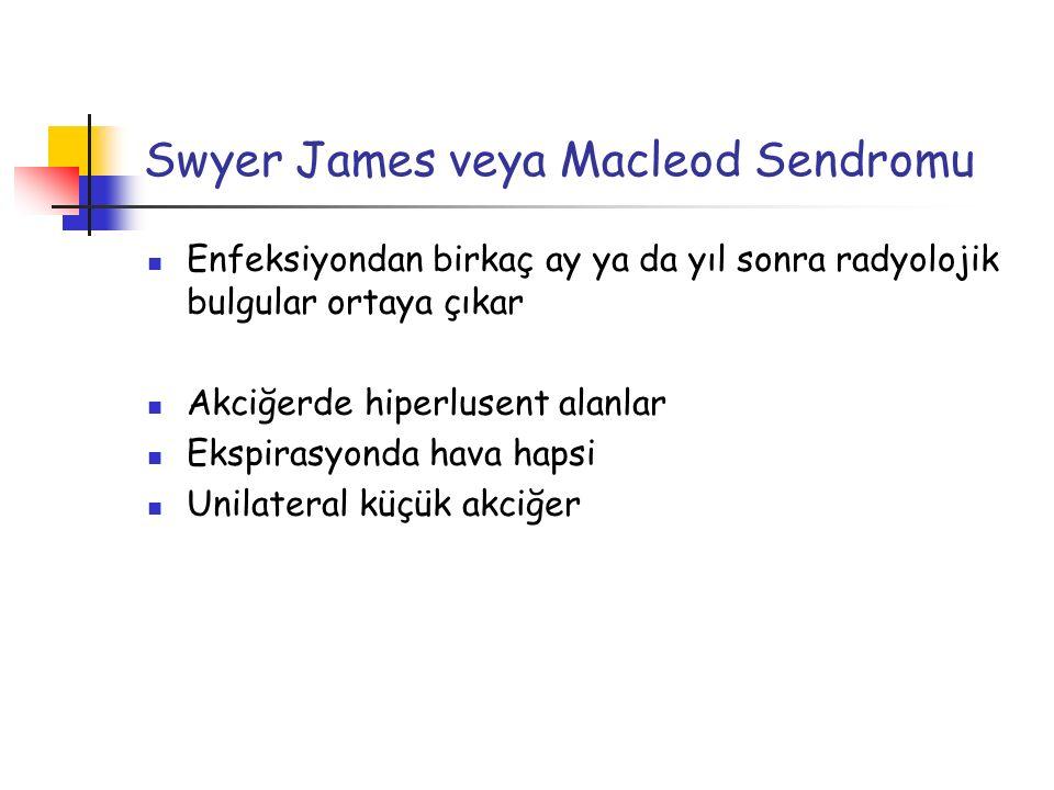 Swyer James veya Macleod Sendromu