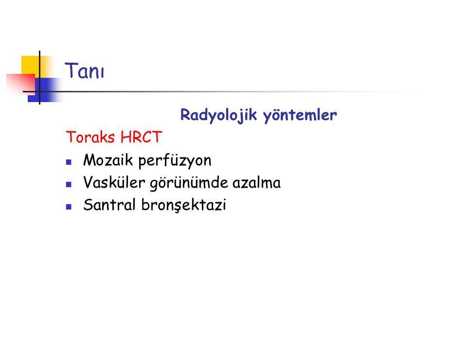 Tanı Radyolojik yöntemler Toraks HRCT Mozaik perfüzyon