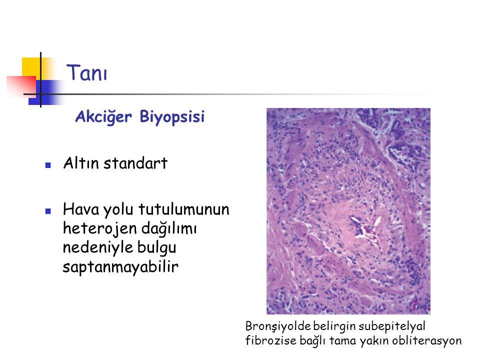 Tanı Akciğer Biyopsisi Altın standart
