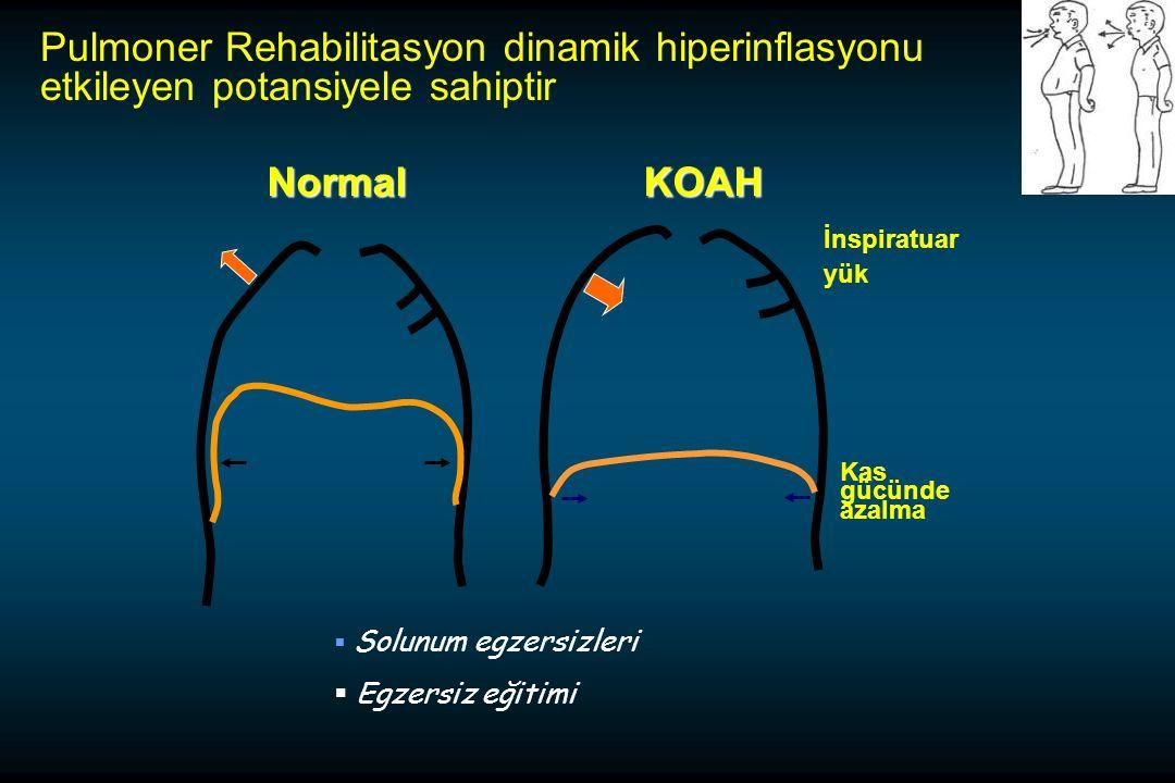 Pulmoner Rehabilitasyon dinamik hiperinflasyonu etkileyen potansiyele sahiptir