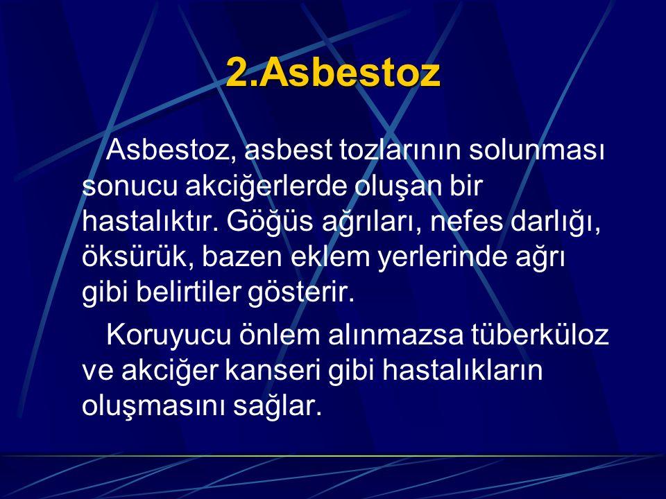 2.Asbestoz
