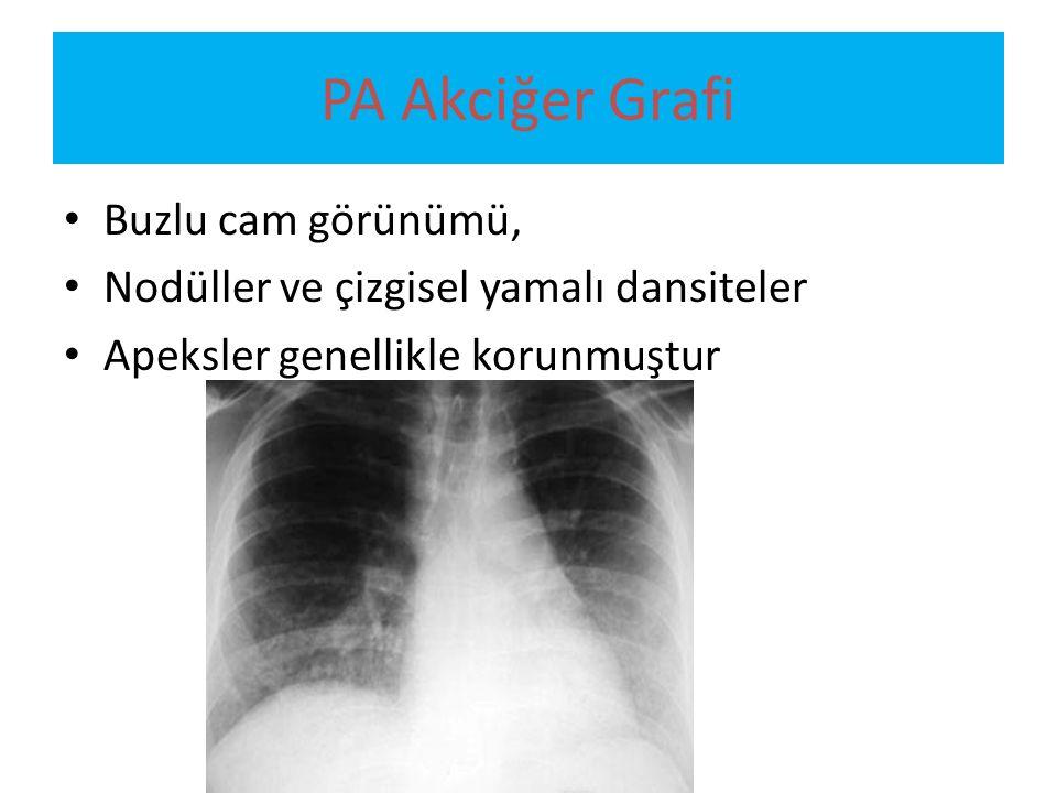 PA Akciğer Grafi Buzlu cam görünümü,