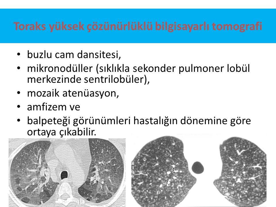 Toraks yüksek çözünürlüklü bilgisayarlı tomografi