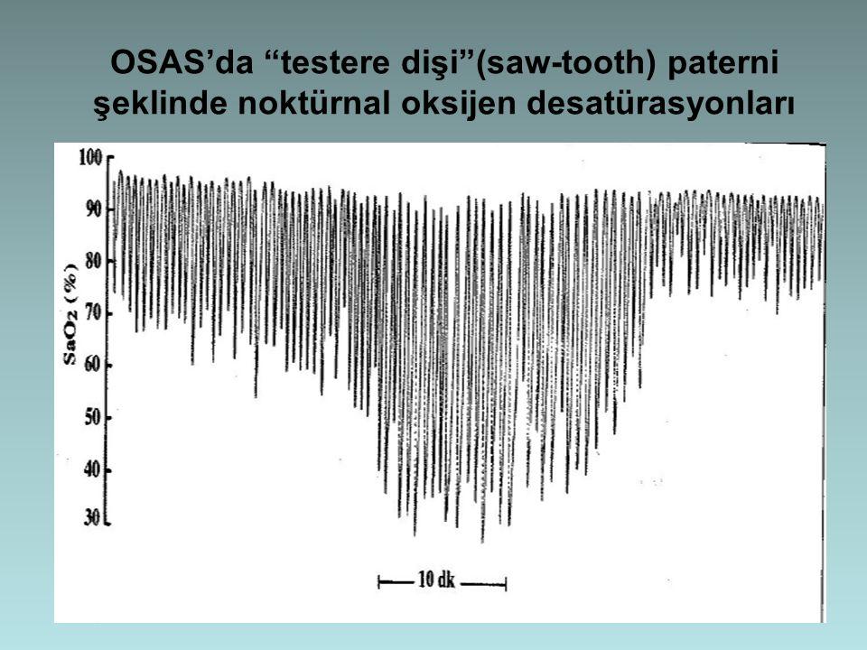 OSAS'da testere dişi (saw-tooth) paterni şeklinde noktürnal oksijen desatürasyonları